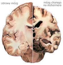 Alzheimer 21 2